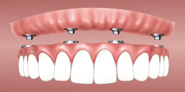 Perfect Teeth At Last With Affordable Dental Implants
