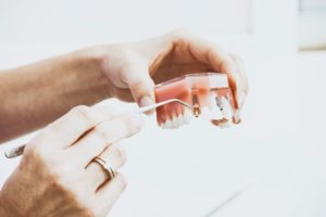 How To Find Cheap Dental Implants In 2020